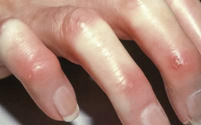 Diagnóstico de esclerodermia passa pela consulta de cinco médicos