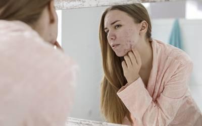 Consumo diário de doces associado a aparecimento de acne