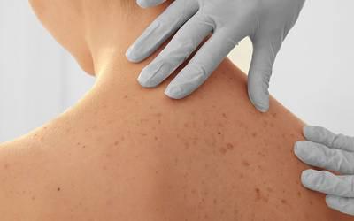 Método inovador e sensível à luz poderá tratar doenças da pele