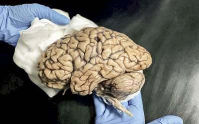 Único banco português de cérebros tem cerca de 60 exemplares